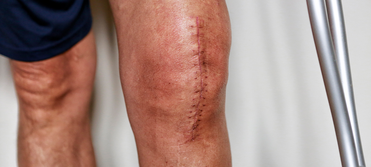 close up of swollen knee with stitches